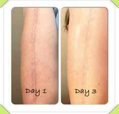 Results from It Works Defining Gel. great stuff for a lot of things .more info email me at pamala_wraps@yahoo.com