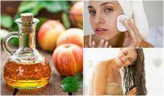 Datorită beneficiilor incredibile ale acestui produs, merită să adaugi anumite trucuri cosmetice cu oțet de mere în rutina ta de înfrumusețare. Nail Fungus, Apple Cider Vinegar, Fungi, Beauty Secrets, Health And Beauty, Cucumber, Detox, The Cure, Garlic