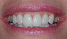 Tooth Crowns | Porcelain Crowns | Crowns Denver Co