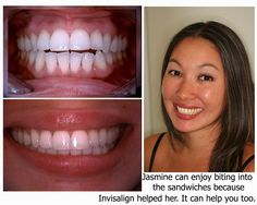 Jasmine used Invisalign and so can you!
