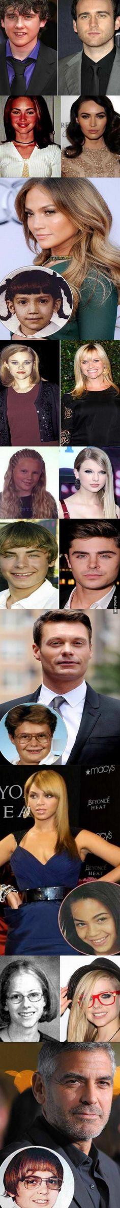 Pictures of Celebrities – Then vs. Now