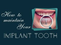 How to maintain your #Implant #tooth:- Use a soft bristle toothbrush and brush gently- Regularly floss your teeth - Clean your tongue- Avoid soft drinks and beverages- Eat calcium rich foods- Avoid eating hard foods because, it can damage implant tooth.