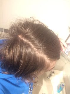 I split my hair to both sides and seen this splitting is it normal? I'm 14 and my hair was also greasy when I took this picture last week. http://ift.tt/2yLhiYT