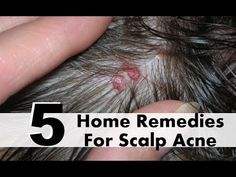 5 Most Effective Home Remedies For Scalp Acne | Home Remedies | Health Natural