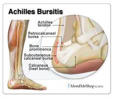 Achilles Tendon Collagen Fibers Run Parallel In Layers