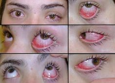 How To Get Rid of Pink Eye Symptoms - well what's boric acid  - seems a little sacary for the eye ...