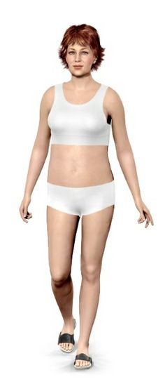 Does liposuction remove fat cells permanently image 2
