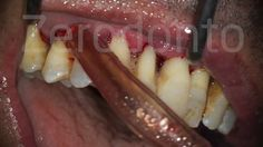 Scaling and root planing for periodontal disease, PMPR (Professional Mechanical Plaque Removal)