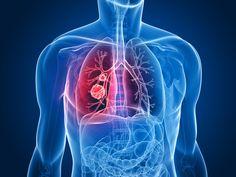 Científicos han identificado un gen responsable de detener la propagación del cáncer de pulmón a otras partes del cuerpo http://cienciamedicaaldia.com/descubren-un-gen-que-detiene-el-cancer-de-pulmon/