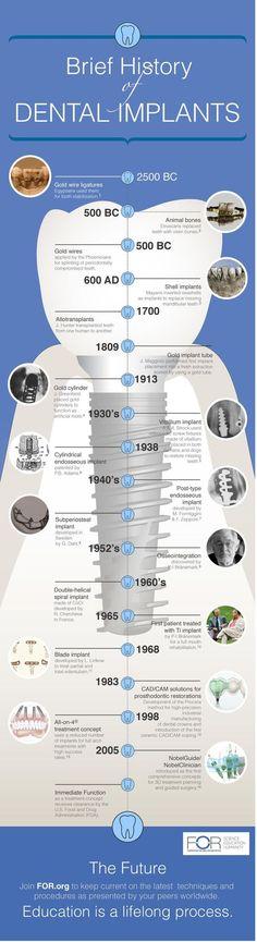 History of Dental Implants #dental #dentalimplants