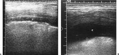 Small effusion and larger effusion Transverse/intercostal images
