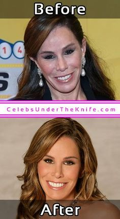 Melissa Rivers Photos Cosmetic Surgery #celebsundertheknife #celebs #celebrity #plasticsurgery #celebritysurgery