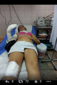 Ella se llama Olidy Contreras y fue atacada aquí en táchira por los colectivos, ruedalo. pic.twitter.com/NcAdBAsxRE