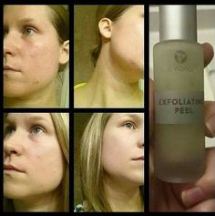 Exfoliating Peel, It Works, Drinks, Bottle, Products, Drinking, Beverages, Flask, Drink