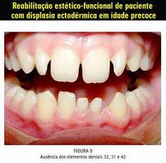 Reabilitação estético-funcional de paciente com displasia ectodérmica em idade precoce | OVI Dental