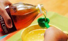 Aujourd'hui, pour la plupart des gens, le vinaigre n'évoque que la sauce vinaigrette. Mais au-delà de ses qualités gustatives,sait-on encore comment cet ingrédient s'est imposé à tous dans l'alimentation d'abord et dans la trousse à pharmacie familiale ensuite ? Trois qualités fondamentales ont imposé le vinaigre dans les foyers des nos aînés : Il était …