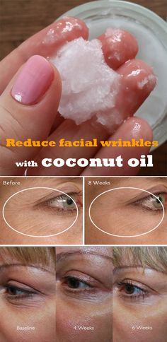 Reduce facial wrinkles with coconut oil gds skønhed, skønhedstip, beauty ha Beauty Care, Diy Beauty, Beauty Skin, Face Beauty, Beauty Ideas, Women's Beauty, Beauty Makeup, Beauty Hacks For Teens, Coconut Oil Uses