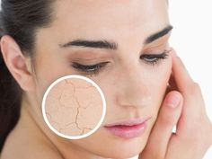 facial skin care tips, for you who have dry skin types. Use foam Do not clean the face of origin on a dry skin types, because dry skin is more sensitive Moisturizer For Dry Skin, Oily Skin, Acne Skin, Sensitive Skin, Dry Skin Home Remedies, Cc Creme, Skin Whitening Soap, Dry Skin On Face, Homemade Face Masks