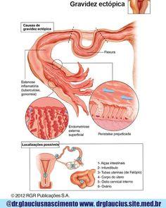 gravidez ectópica - Pesquisa Google