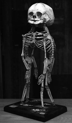 Conjoined twins #skeleton