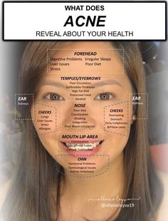 Pin by Emily Kye Coss on glowing ✨ in 2019 Beauty Tips For Skin, Health And Beauty Tips, Skin Tips, Skin Care Tips, Natural Beauty, Health Tips, Clear Skin Face, Face Skin Care, Chin Acne Causes