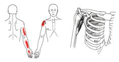 Coracobrachialis trigger point diagram, pain patterns and related medical symptoms. The myofascial pain pattern has pain locations that are displayed in red and associated trigger points shown as Xs. Hand Therapy, Massage Therapy, Medical Symptoms, Referred Pain, Trigger Point Therapy, Reflexology Massage, Thai Massage, Massage Benefits, Acupressure Points