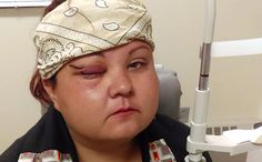 Woman injured by police at Standing Rock. This is going too far! Native Americans have the right to clean water!!!