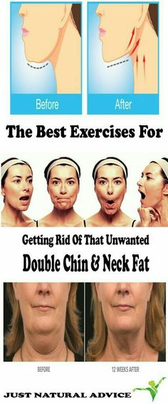 The Best Exercises For Getting Rid Of That Unwanted Double Chin & Neck Fat fat loss diet how to get rid Hair Growth Home Remedies, Home Remedies For Acne, Health Tips, Health And Wellness, Double Chin Exercises, Neck Exercises, Facial Exercises, Double Chin Workout, Fitness Exercises