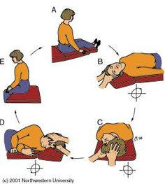 Epley Maneuver