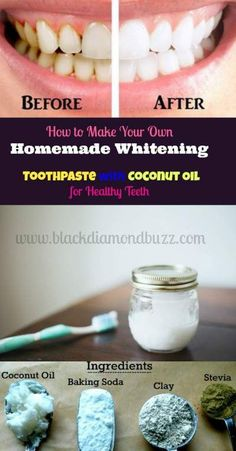 Homemade Toothpaste for whitening teeth with Coconut Oil - Health benefits Ingredients > baking soda > coconut oil > clay > stevia - zahnpasta Coconut Oil Toothpaste, Toothpaste Recipe, Homemade Toothpaste, Natural Toothpaste, How To Make Toothpaste, Herbal Toothpaste, Teeth Whitening Remedies, Natural Teeth Whitening, Whitening Kit