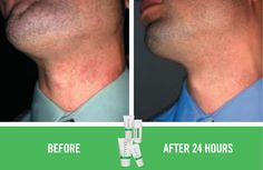 Soothe is so fantastic for treating razor burn!! Check out carlylue.myrandf.com for more details and learn how to get 10% off and free shipping!