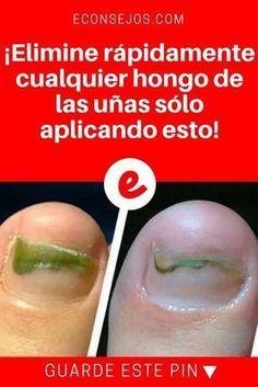 CLAVO DE OLOR para Hongos uñas pies y mas