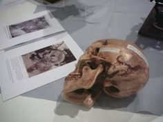 """A skull imparts a bit of spookiness to the  """"The Mysterious Death of Tom Thomson"""" display at the Grimsby Public Art Gallery. Photo by Don McLeod."""