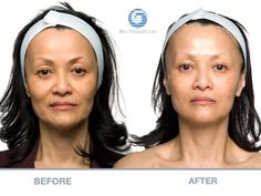 """West Berkeley Wellness provides the non-surgical facelift, Bio-Ultimate microcurrent treatment, as seen on the Oprah episode titled """"How to Look 10 Years Muscles Of The Face, Facial Muscles, Facial Before And After, Face Lift Exercises, Non Surgical Facelift, Microcurrent Facial, Face Massage, Spa Massage, Beauty Spa"""