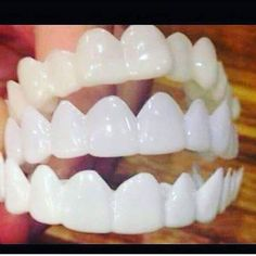 -hollywood smile- The Amazing & Perfect Confident Smile – Newly Chic Toothpaste Pimple, Teeth Whitening, Veneers Teeth, Dental Veneers, Perfect Smile Teeth, Misaligned Teeth, Teeth Implants, Dental Implants, Vestidos