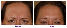 Great Botox results from our Denver dentist