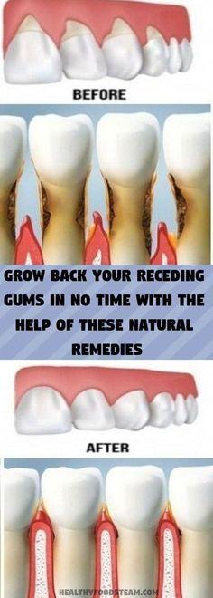 Grow Back Your Receding Gums Help Of These Natural Remedies #oralcarerecedinggums #oralgum