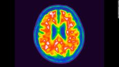 A blood test to detect early signs of Alzheimer's disease has been developed.