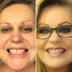 Get clear braces without in-office visits for thousands less than a traditional orthodontist. Get started with a free scan at a Candid Studio. Teeth Alignment, Clear Aligners, Teeth Straightening, Starter Kit, Your Smile, Beauty Skin, 6 Months, Chakra, Candid