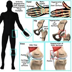Natural Home Remedies for Arthritis Pain Relief