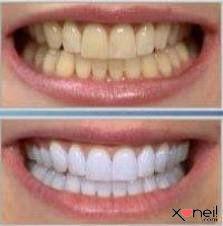 Há quem diga que os dentes brancos são determinantes para um sorriso arrasador. E o sorriso – todo mundo sabe – é o nosso principal cartão de visitas. Quem tem dentes amarelados, seja por conta do cigarro, do café, ou mesmo por problemas genéticos, e não tem dinheiro para fazer clareamento dental, pode apelar …