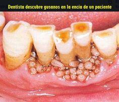 Dentista descubre gusanos en la encía de un paciente | OVI Dental