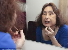 Connie Culp: her life after face transplant. US first face transplant.  Article by: Kathryn R. Bown    Connie Culp was the first person to receive a face transplant in the U.S in 2008, after her top lip, nose, roof of her mouth, one eye and both cheeks were destroyed by then husband Tom Culp, who brutally shot her in the face after flying into a rage.