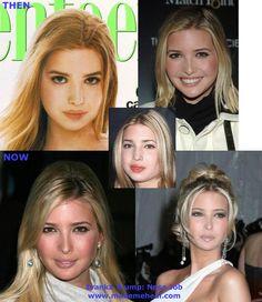 File:Ivanka-trump-nose-job.jpg