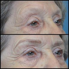 My new Connecticut friend  #noagelimit  #1937 #atlanta #scpc #cpcp #microblading #browdiaries #heidicosmetictattoo  #microstroking #browtattoo #hairstrokes #cosmetictattoo #eyebrows #brows  #eyebrowtattoo #alopecia #atlantatattooartist #inkedgirls #browsonfleek #trichotillomania