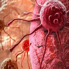 Cancer is an accumulation of mutations on genes that control the cell cycle. Cancer cells are also called malignant or metastasizing tumor cells. Illinois, Testicular Cancer, Bacterial Infection, Ketogenic Diet For Beginners, Traditional Chinese Medicine, Digital Trends, Cancer Treatment, Machine Learning, Immune System