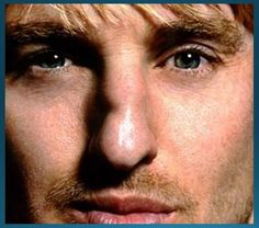 Handsome Owen Wilson-who reminds me very much of a Dennis Hopper. I admire him because he co-wrote Rushmore with Wes Anderson. Wes Anderson, Different Nose Shapes, Nose Types, Blood Makeup, Crooked Nose, Nasolabial Folds, Cuts And Bruises, Owen Wilson, Big Noses