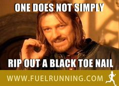 One does not simply rip out a black toe nail.