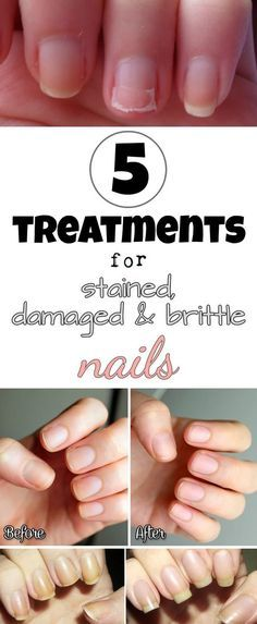 Treatment for stained nails The nails turn yellow or get dark shades because of the pigments in nail polish, but also because of body zinc deficiency. To get rid of this inconvenience, make a mixture of baking soda and hydrogen peroxide (one teaspoon of each). Dab this solution with a damp stick directly onto nails …