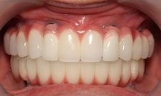 Tips for Choosing the Best Dental Specialist Dental Problems, Dental Implants, Good Things, Tips, Counseling